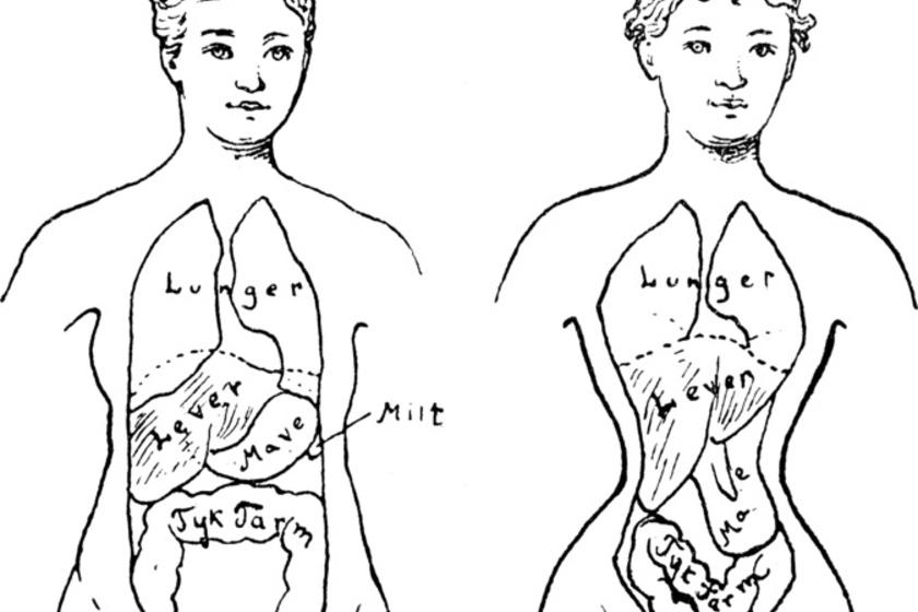 Régi rajz arról, mit tesz a fűző a testtel.