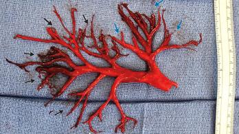 A tüdő belső hálózatát formáló vérrögöt köhögött fel egy beteg