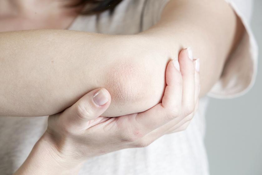 A száraz bőr 6 alig ismert oka, amire nem gondolnál – Nemcsak a hideg, hormonprobléma is okozhatja