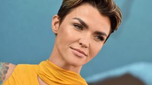 Ruby Rose szívesen megreformálná a magyar egészségügyet