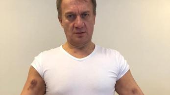 Varju László feljelentést tett testi sértés miatt