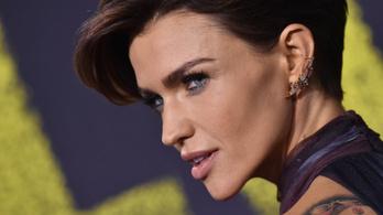 Egy hollywoodi színésznő berágott a magyar kórházak állapotán, bevásárolt az állam helyett