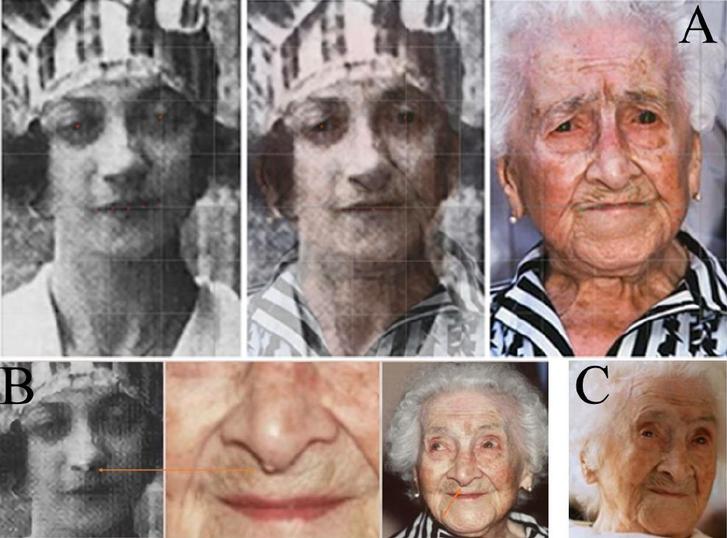 Az egyik bizonyítéknak szánt összehasonlítás: Yvonne Calment fiatalkori képén és az állítólagosJeanne Calment időskori fotóján is látható az orron egy fibróma.