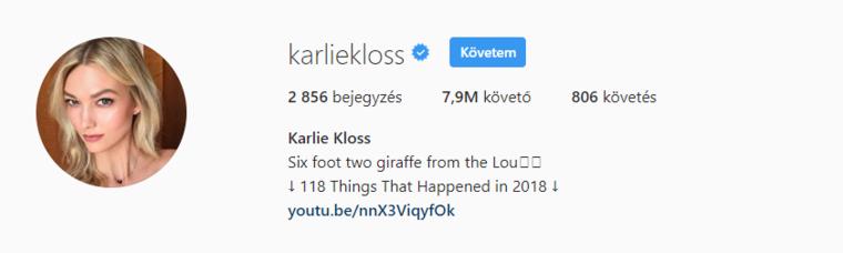 A szintén VS modell Karlie Kloss hamarosan a nyolcmilliós határt lépi át.