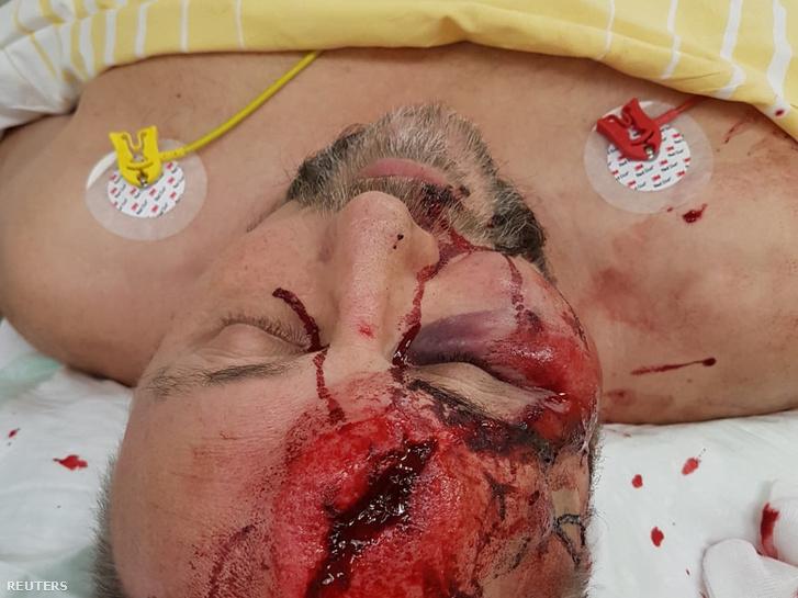 Frank Magnitz sérülése a támadás után, Bremenben 2019. január 7-én
