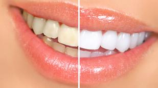 Melyik a legjobb fehérítő fogkrém?