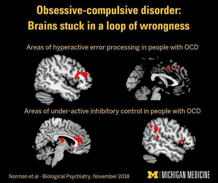 OCD betegségben szenvedők agyának aktivitásbeli különbségét mutató felvételek