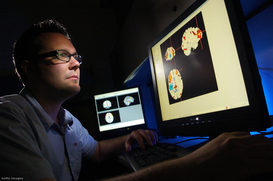 Colorado Egyetem hallgatója, nézi az agyról készített fMRI felvételeket, amelyek a kongitív viselkedést szabályozó területeket mutatja pirossal kiemelve