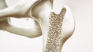 Új felfedezés szabhat gátat a csontritkulásnak