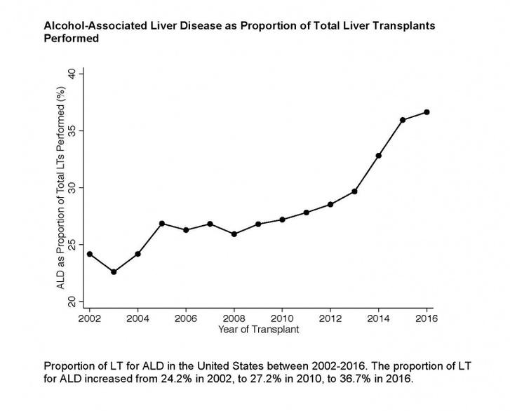 Az alkoholizmussal összefüggő májátültetések arányának alakulása 2002 és 2016 között az Egyesült Államokban