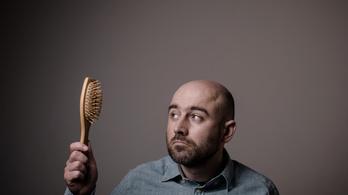 Miért nem kopaszodik a kopaszok szakálla?