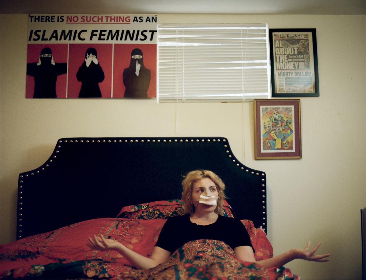 """Laura Loomer egy zsidó származású iszlámellenes aktivista. És hogy mi az a kötés az orrán? Nem, nem egy muszlim migráns verte be, hanem ő operáltatta kevésbé """"zsidóssá"""", miután David Duke és ismert neonácik gázkamrás posztokban kezdék el gúnyolni. Egyébként az antiszmeitizmus óriási skizofréniát okoz a fehér fajvédők táborában. Ugyanis Trump markánsan filomszmeita és Izrael-párti, de közben simán hajlandó kikacsintós antiszemita utalásokkal operálni, ha olyan liberálisokat kell támadni, mint Soros György."""