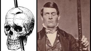 Átfúrta a koponyáját egy vasrúd, eltette emlékbe