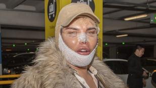 Így néz ki egy friss plasztikai műtét után az élő Ken baba