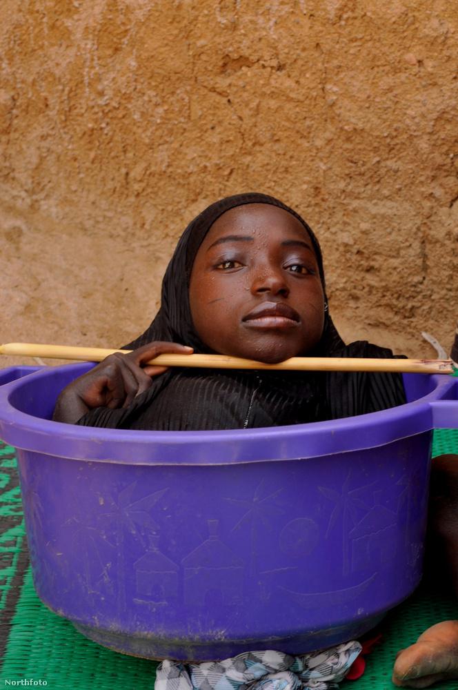 Rahma Haruna szintén végtagok nélkül élt, de őt nem adták örökbe, hanem saját családjával nőtt fel roppant szerény körülmények között Nigériában