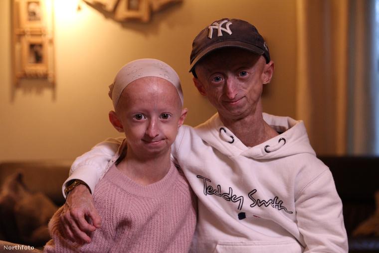 Michiel Vandeweert ugyanis azzal került be a hírekbe, hogy testvérét, a 12 éves Ambert szintén érinti a progéria, amelynek génjét a szüleiktől örökölték
