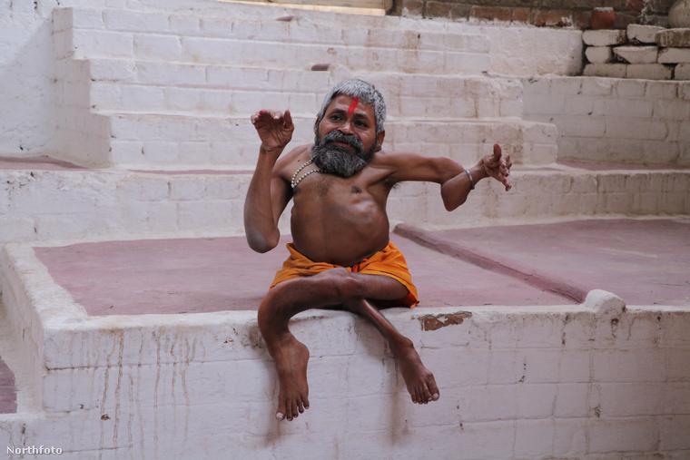 Ezen a képen Bharat Tiwari látható, akinek közelebbről fel nem derített okok következtében deformáltak a csontjai, illetve a végtagjai