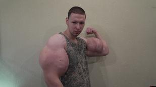 Oroszország legnagyobb bicepsze a syntholtól ekkora