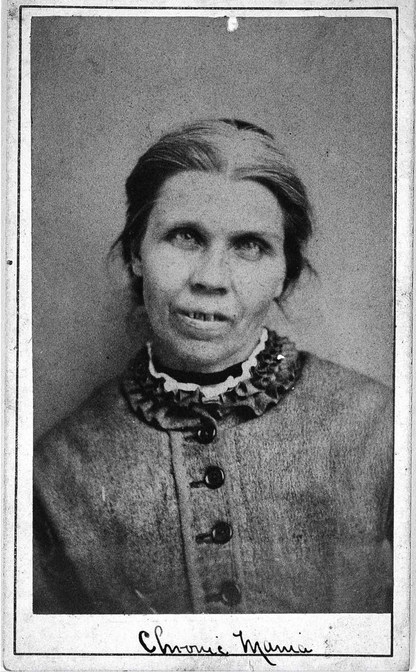 Egyes intézményekben szokás volt a páciensek portréfotózása. A nő a képen egy viktoriánus elmegyógyintézet páciense volt.