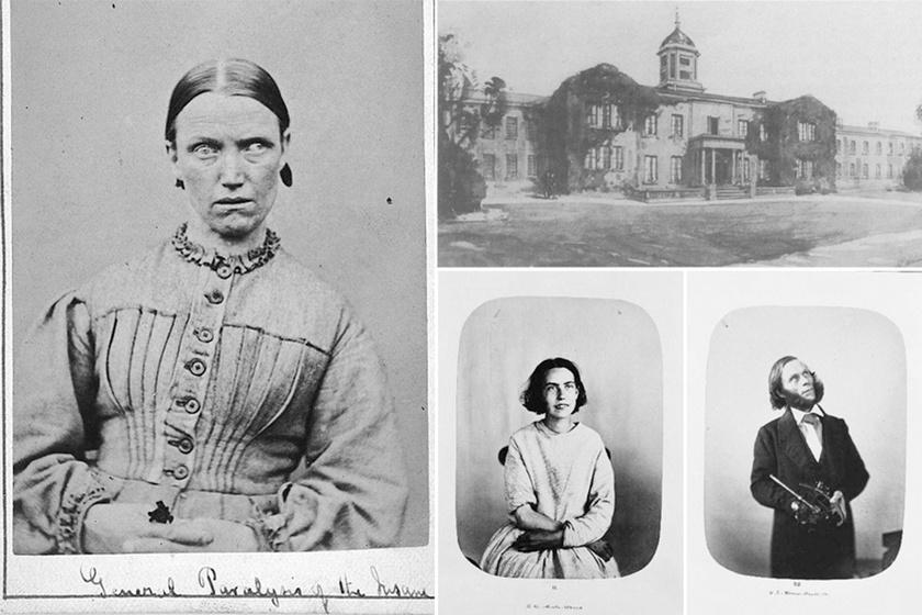 Mi zajlott valójában a viktoriánus elmegyógyintézetekben? Szomorú, de igaz