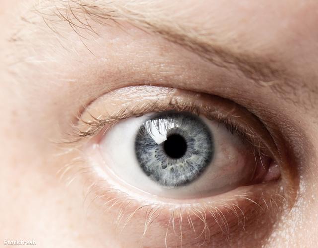 Dívány - Egészség - Miért tikkel a szemhéj  42d30a1802
