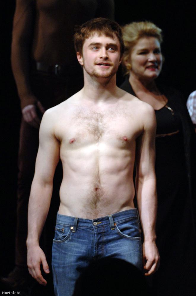 Daniel Radcliffe szintén nem varratott, még