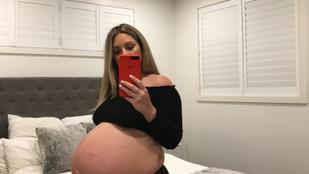 Túl nagy hasa miatt aláztak meg egy terhes nőt