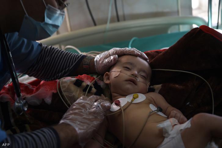 Légzőszervi problémákkal küzdő afgán kisgyerek az Indira Gandhi Gyermekkórházban, Kabulban, 2019. január 2-án