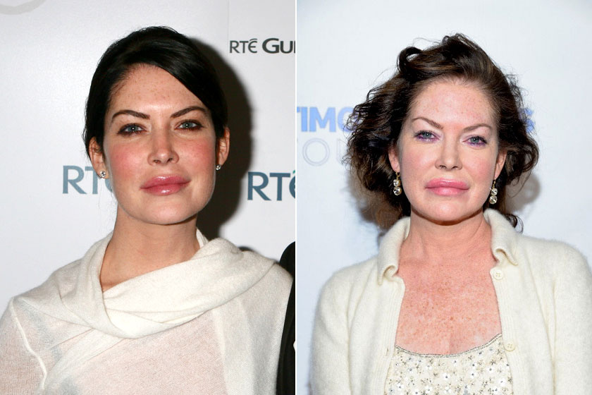 Bő tíz év és sok elhibázott plasztikai beavatkozás a két kép között a különbség.