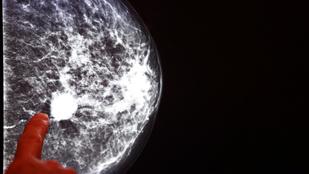 Egy eljárás, ami már több százezer nő életét megmentette