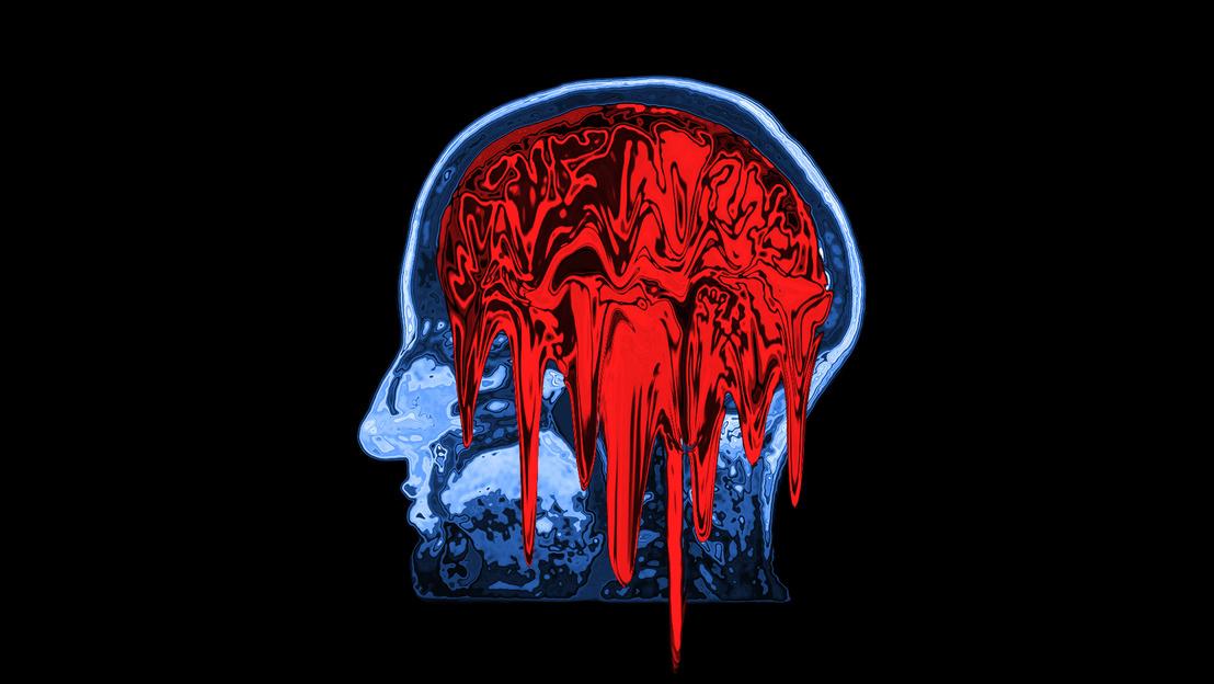 5g mri scan brain