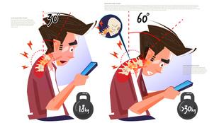 Text neck: Ezért fáj a nyakad a sok mobilozástól