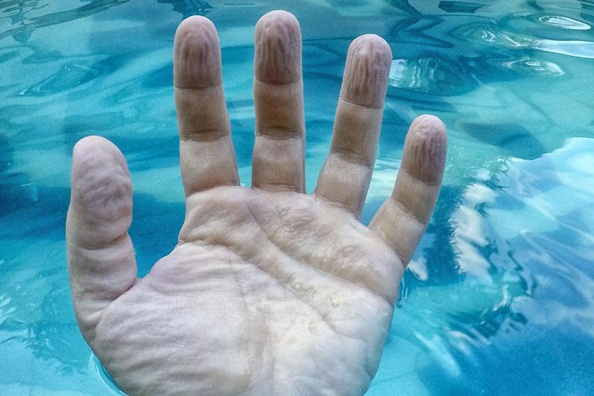 A balesetben levágott, majd visszaillesztett ujjaknál nem figyelhető meg ráncosodás, így rájöttek, hogy idegi folyamat áll a háttérben, aminek evolúciós okai vannak.