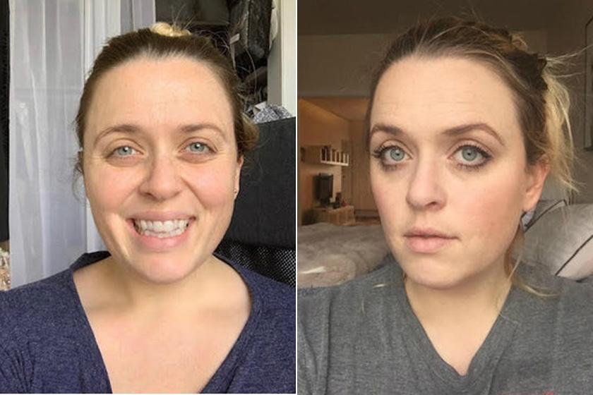 Az arca a kísérlet előtt és négy hét után.