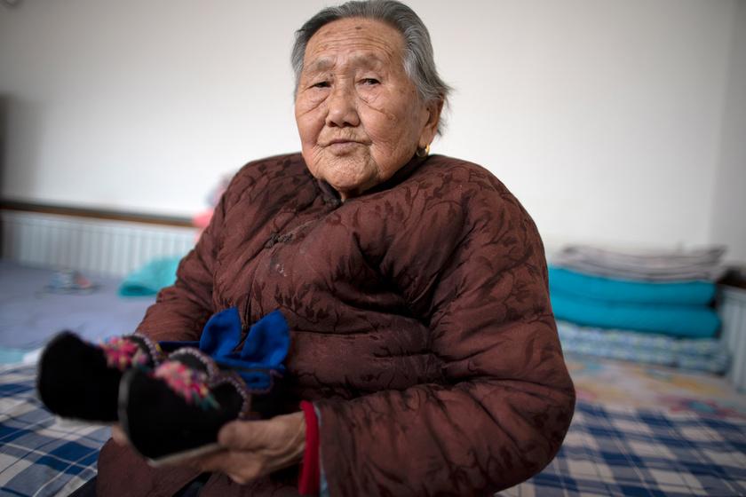 """Csao asszony és speciális cipője. A lábelkötés gyakran halálos lábfertőzéssel vagy a teljes bénulás veszélyével járt, ezért szerencsésnek számított az, akinek """"csak"""" deformálódott a lábfeje."""