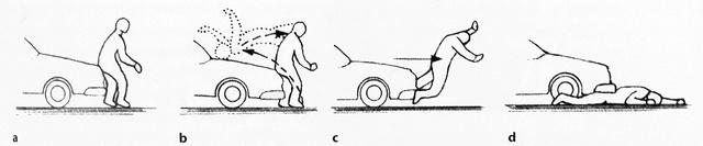 A gyalogoselütés három fázisa: a) elsődleges ütközés; b) c) ellökés, illetve a gyalogos felcsapódása a járműre; d) a gépkocsi keresztülhalad az emberi testen