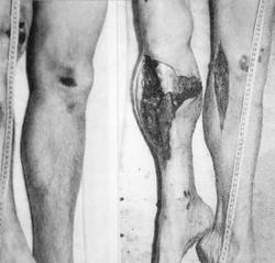 Elsődleges ütközési sérülés a lábszáron