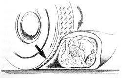 Nyúzásos, ún. décollement sérülés ás a vértasak keletkezésének sémája