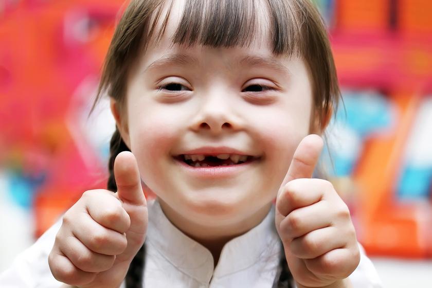 Nincs magzati vizsgálat, ami a boldogságot mutatná ki előre: gondolatok a Down Világnapra