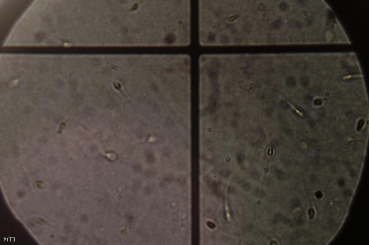 Mikroszkóp alatt vizsgált hímivarsejtek, spermiumok Debrecenben a Kaáli Intézetben 2018. január 10-én.