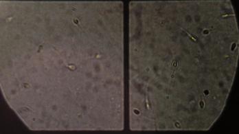 Légszennyezettség miatt romlik a spermiumtermelés