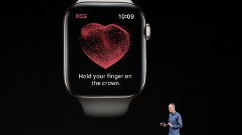Megérkezett hazánkba az Apple Watch EKG funkciója
