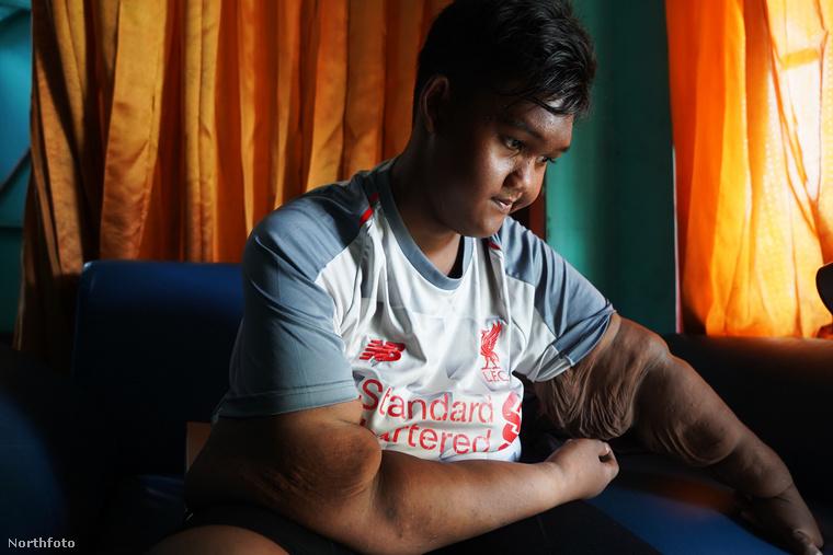 A fiú testtömegének több mint felétől, 100 kilótól szabadult meg az orvosi beavatkozásnak köszönhetően