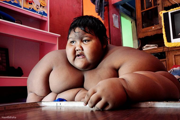 Arya Permana egy 12 éves indonéziai kisfiú, aki 192 kilogrammos súlyával a világ legnehezebb gyereke volt