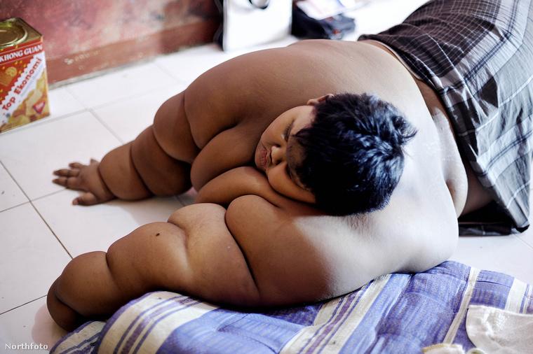 Arya annyira meghízott, hogy a műtét elkerülhetetlen volt: ha nem fogy le, belehalt volna a túlsúlyába