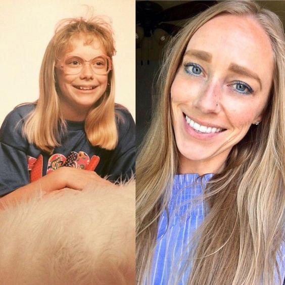 Az biztos, hogy a pubertáskor elképesztő dolgokat művel. Nem mondanánk meg elsőre, hogy ugyanaz a lány van a két képen.