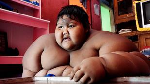 100 kilót fogyott a világ legkövérebb gyereke