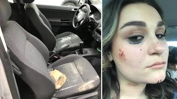 Szikladarab csapódott a szélvédőjére, miközben vezette a kocsit