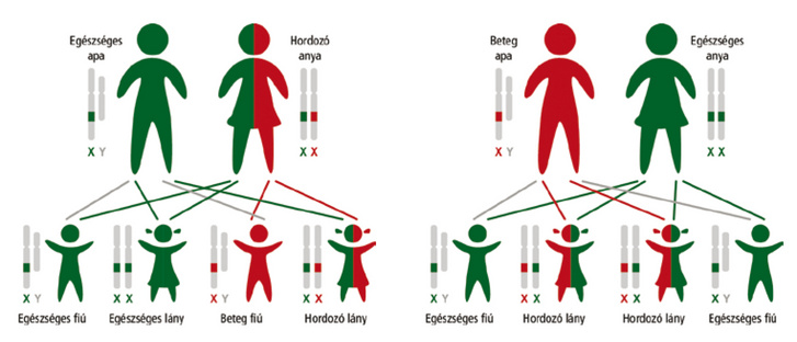 Hemofília és családtervezés - Forrás: mhe.hu