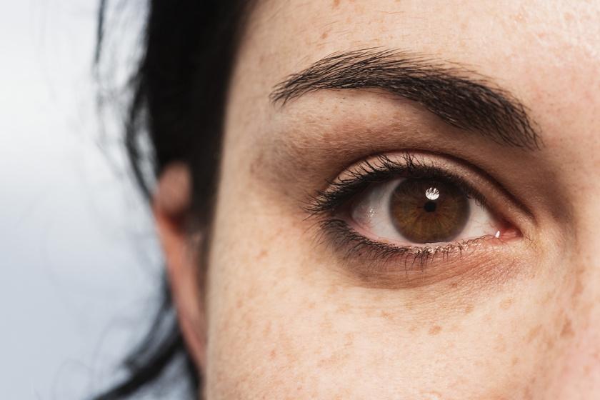 Eleget alszol, mégis karikás vagy duzzadt a szemed? Ez a 6 ok állhat mögötte